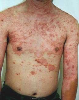 psoriasis_cases_01.JPG
