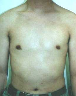 psoriasis_cases_02.JPG
