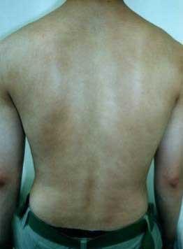 psoriasis_cases_04.JPG