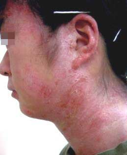 psoriasis_cases_05.JPG