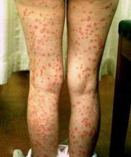 psoriasis_cases_11.JPG