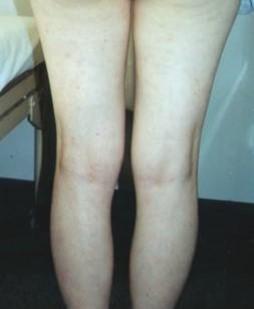 psoriasis_cases_12.JPG