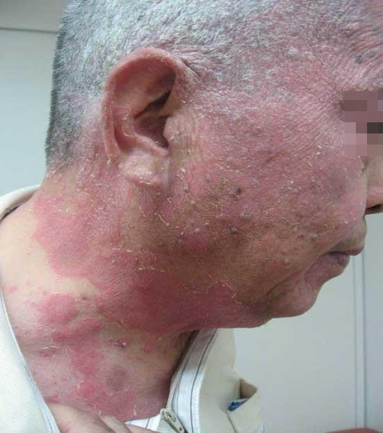 psoriasis_cases_13.JPG