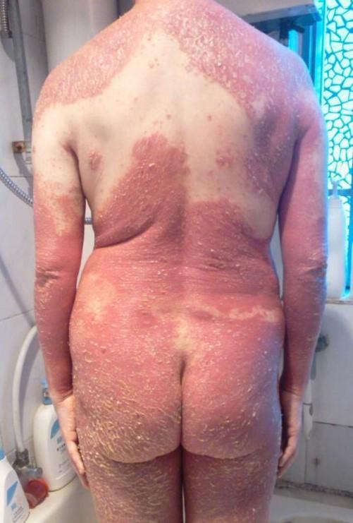 psoriasis_cases_19.JPG