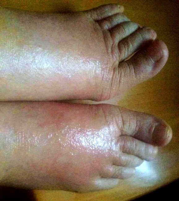 psoriasis_cases_21.JPG