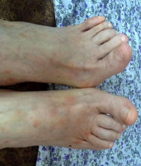 psoriasis_cases_22.JPG
