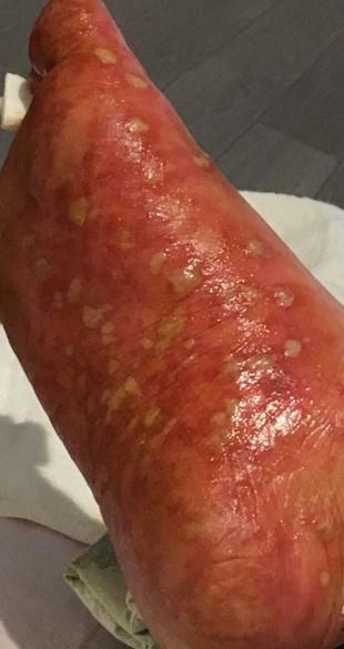 psoriasis_cases_24.JPG