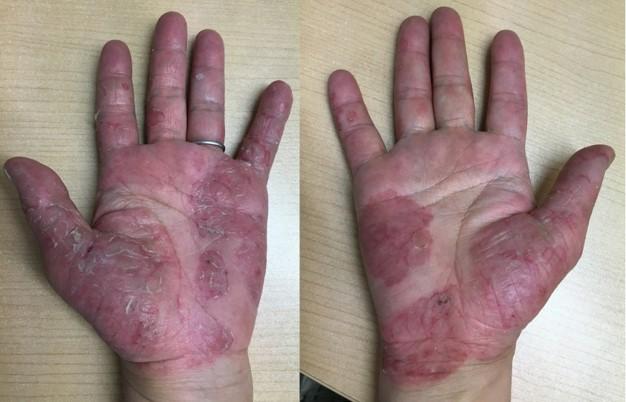 psoriasis_cases_27.JPG
