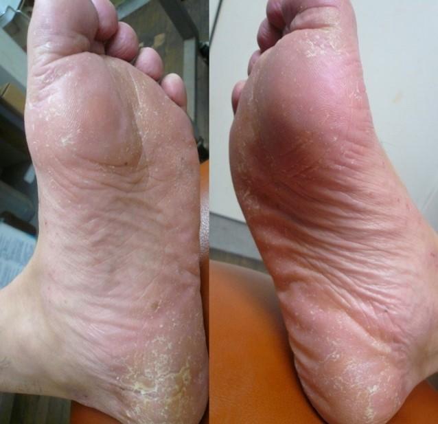 psoriasis_cases_30.JPG