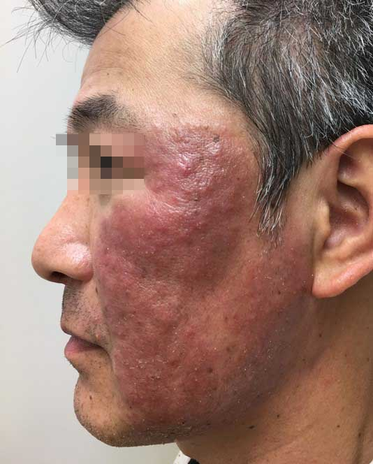psoriasis_cases_31.JPG