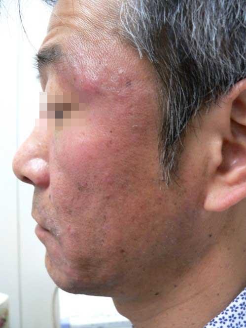 psoriasis_cases_32.JPG