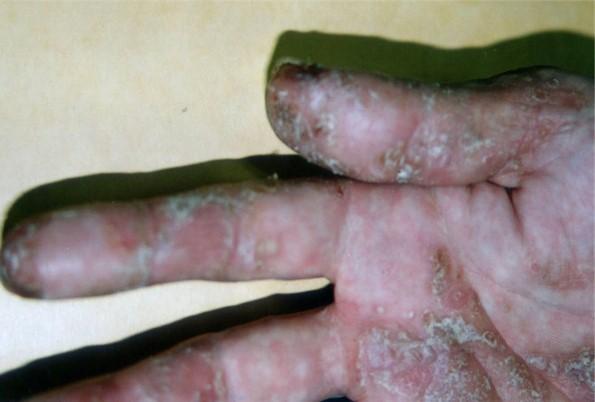psoriasis_cases_33.JPG