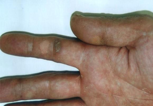 psoriasis_cases_34.JPG